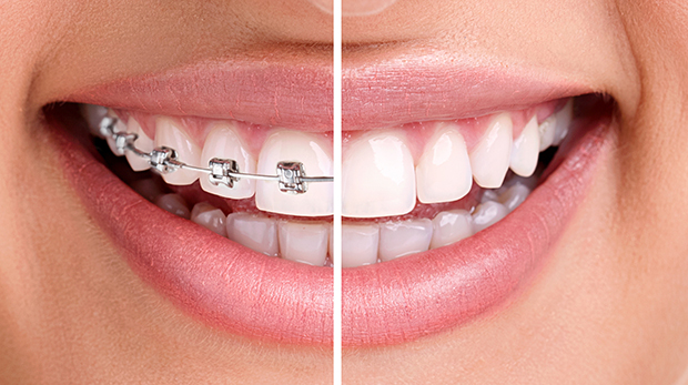 close up of woman's smile and teeth, half with invisalign and half with braces - invisalign vs. braces