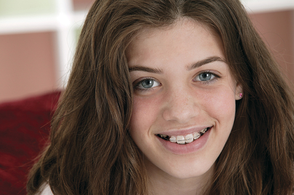 Portrait of smiling girl with a retainer