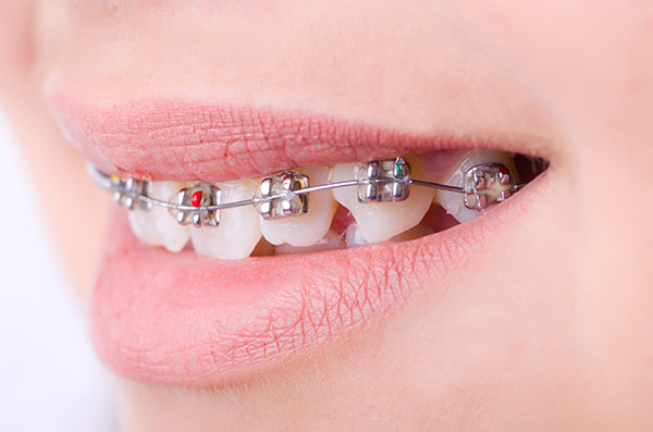 A teenager correcting their crooked teeth problems through orthodontic treatment.
