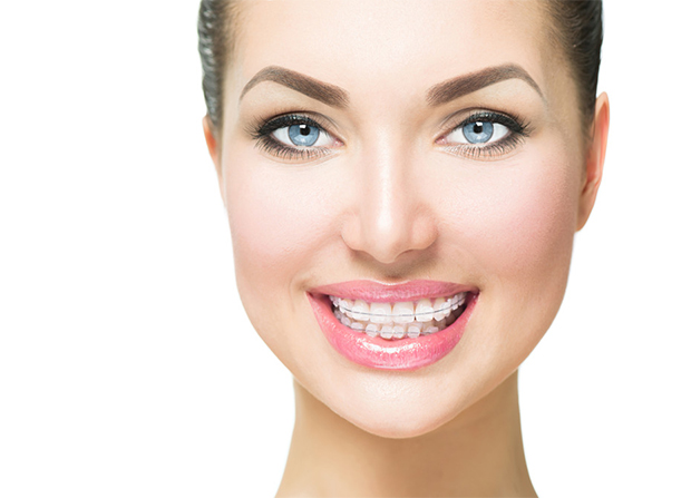 Smiling adult woman with esthetic clear braces - Orthodontics for Adults