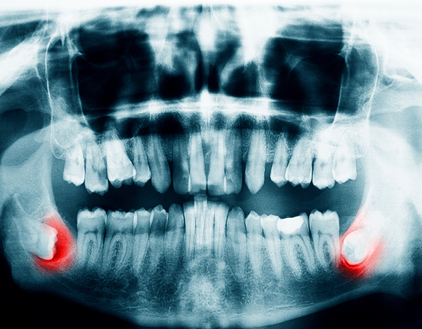 Panoramic X-ray showing impacted wisdom teeth - is it wise to get wisdom teeth removed