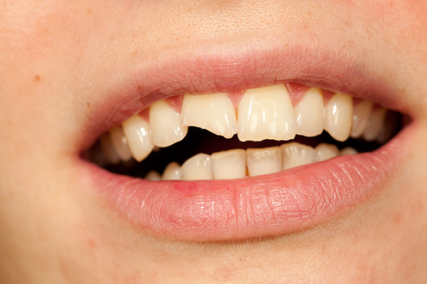 Close up of a mouth with a chipped tooth and cracked tooth enamel.