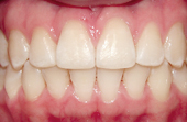 front and bottom teeth after invisalign treatment