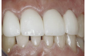 After Crowns & Whitening