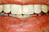 After Dental Crowns - All-porcelain crowns