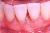 After Cosmetic Gum Enhancement Surgery