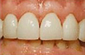 After Veneers - Veneers are shells of porcelain that are bonded onto the fronts of teeth