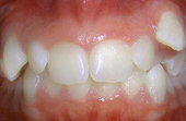 front and bottom teeth before metal braces
