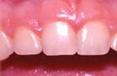 Before Cosmetic Gum Enhancement Surgery