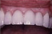 After Bridges - Bridges replace one or more missing teeth
