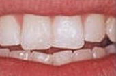 After Contour & Reshape - Procedure used to change the length, shape or surface contours of teeth