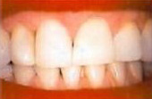 After Teeth Whitening - Teeth whitening helps to return teeth to their natural, vibrant white